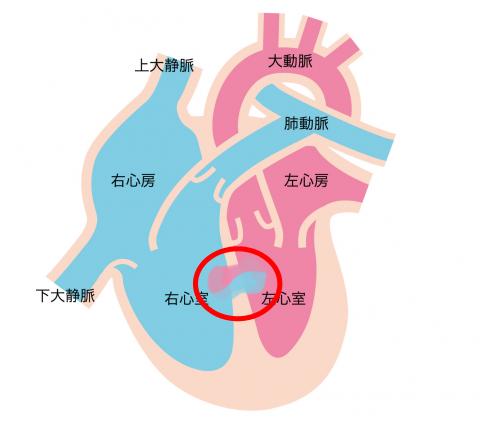 「心室中隔欠損症」の赤ちゃん・子供の心臓の解説図