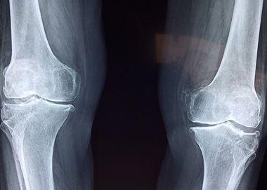 子供の足が痛い!足裏・付け根・足首・膝部分別痛みの原因と対処法