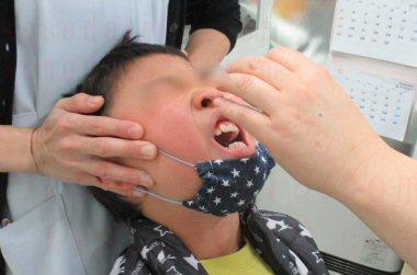 2020年子供のインフルエンザA型の検査の様子。すごく痛かったそうです